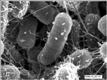 BacteriavsVirus_Bluephage