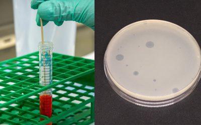 PCR versus cultural methods to detect coliphages